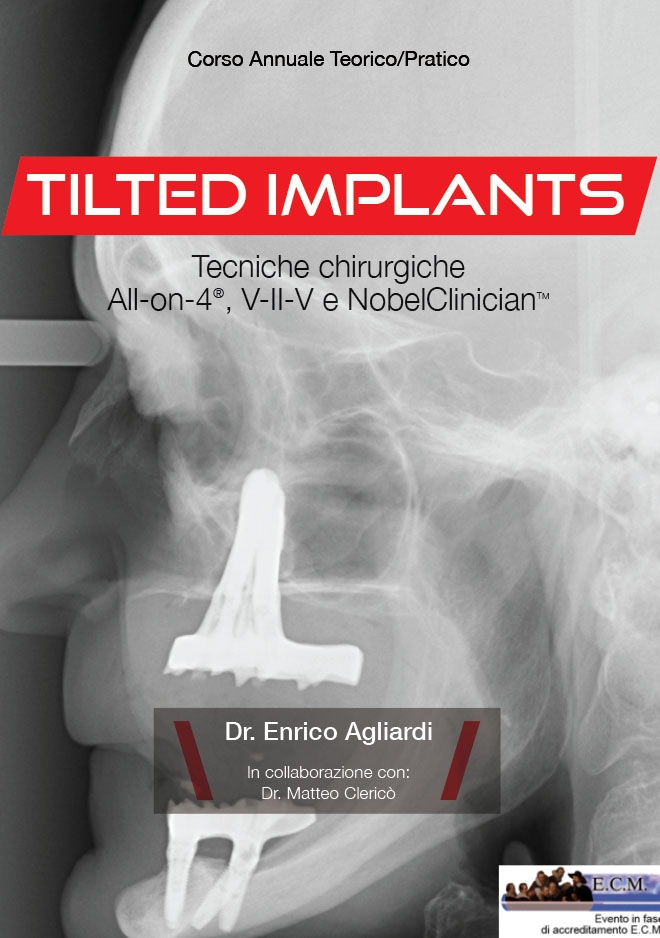 CORSO TILTED IMPLANT