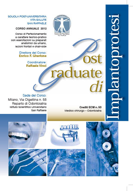 """Post Graduate di Implantoprotesi"" – BioSAF IN"